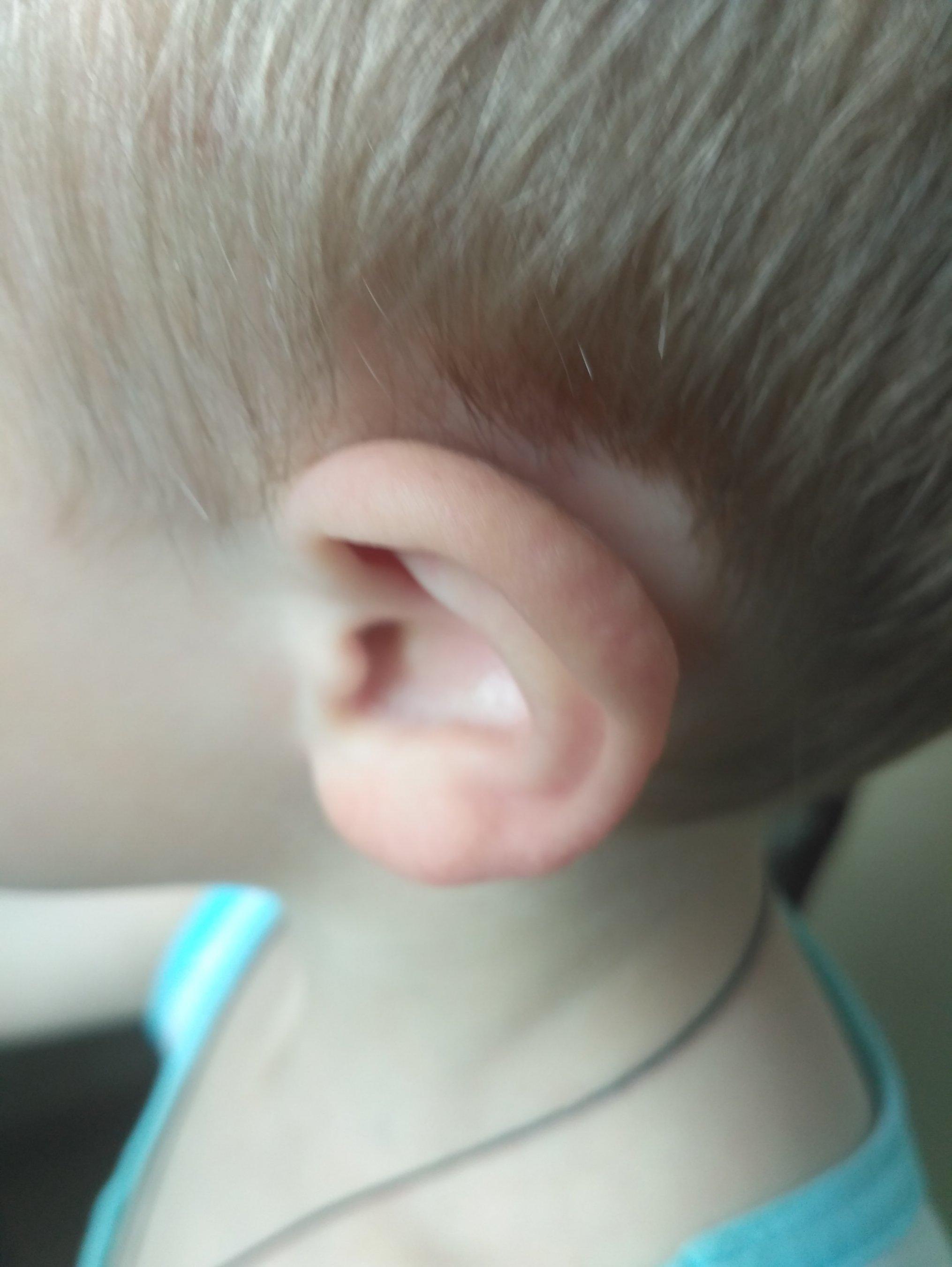 Затылочные лимфоузлы у ребенка в год фото