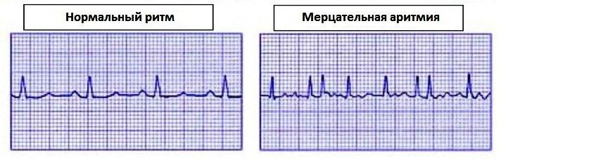 Мерцательная аритмия: обзор | Консультация аритмолога в Минске ...