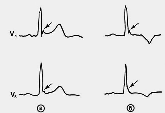 Синдром ранней преждевременной реполяризации желудочков ...