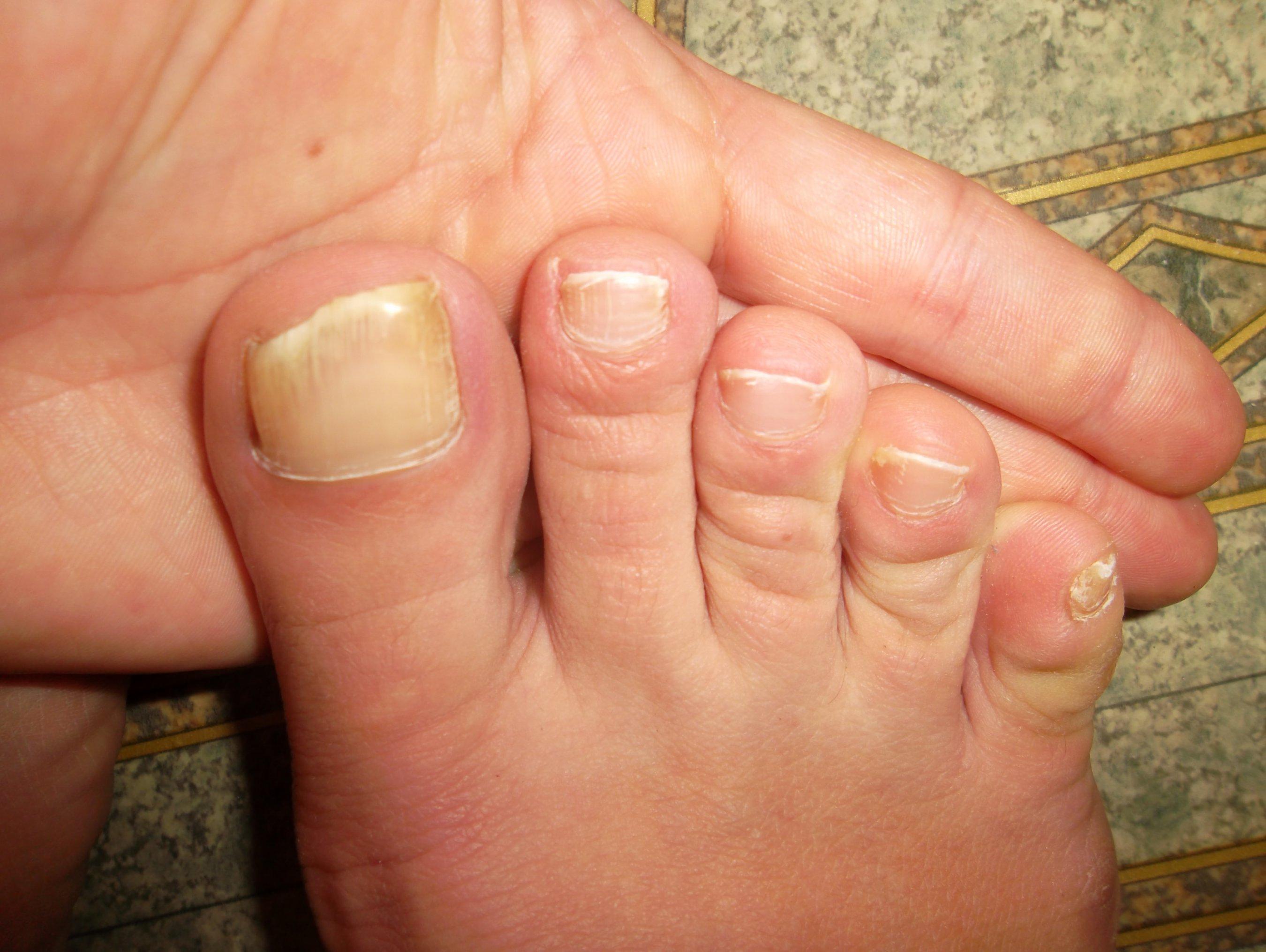 Здоровый цвет ногтей на ногах
