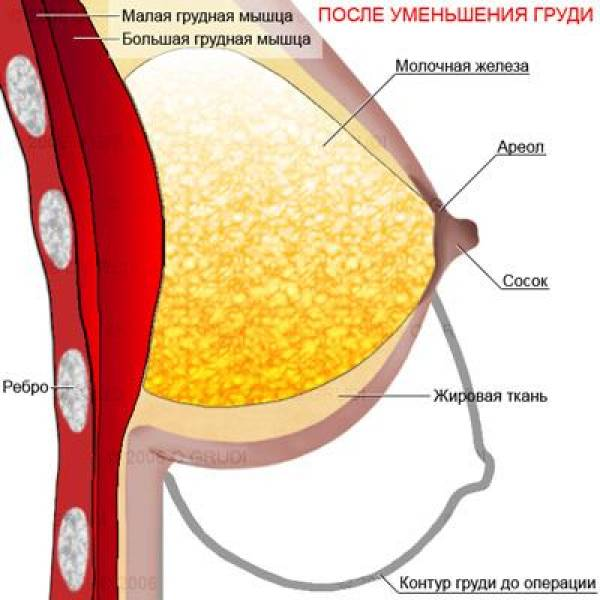 Маммопластика. Увеличение груди в Минске