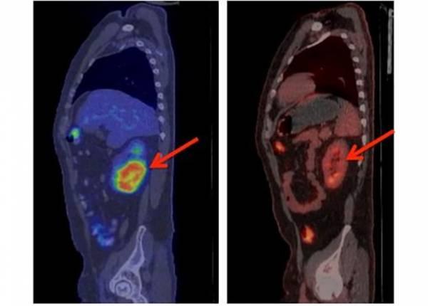 Ноу-хау в лечении острого лимфобластного лейкоза: 27 из 29 пациентов полностью излечились