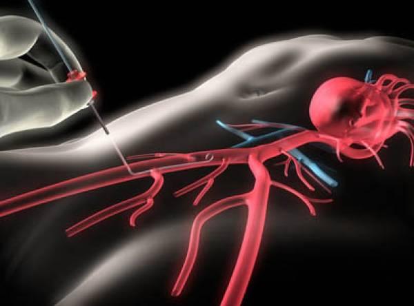 Следует ли рекомендовать реваскуляризацию для лечения бессимптомной ишемической болезни сердца?