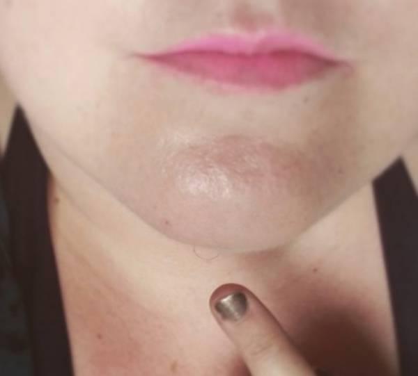 Волосы на подбородке у женщин: причины и  как избавиться