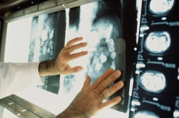 В Беларуси 300 000 человек, которые лечились от рака, - на учете у онкологов