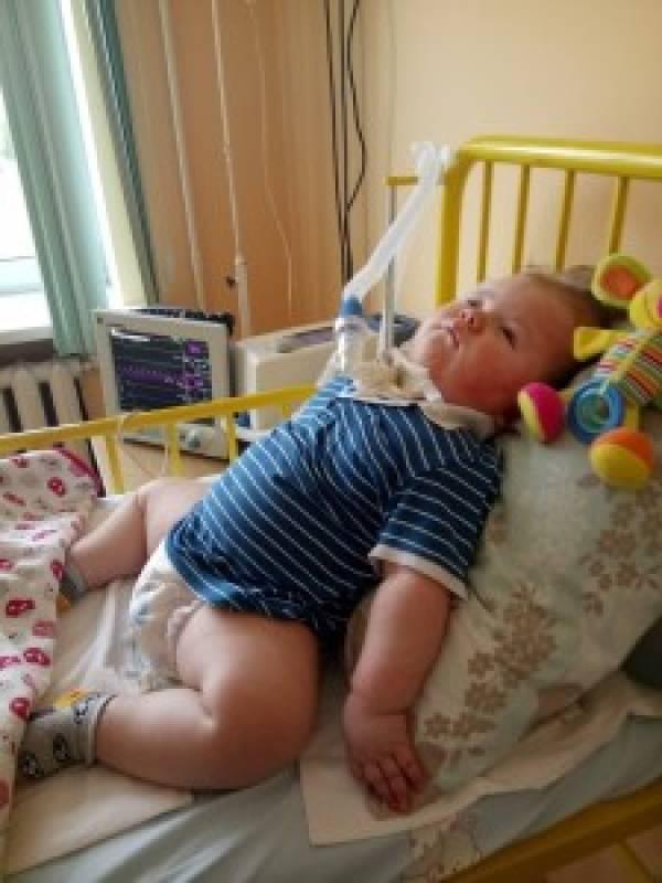 4-летняя Вика уронила младшего брата. Ребенок не должен был выжить