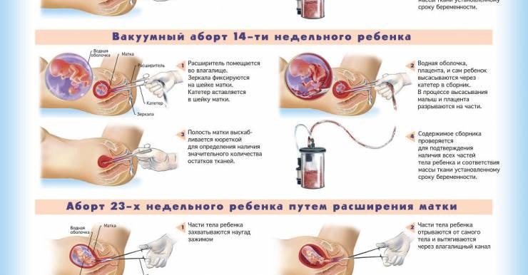 Медикаментозный аборт в Беларуси. Где сделать? Какие последствия?