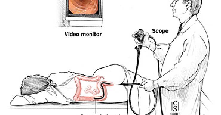 Процедура колоноскопии