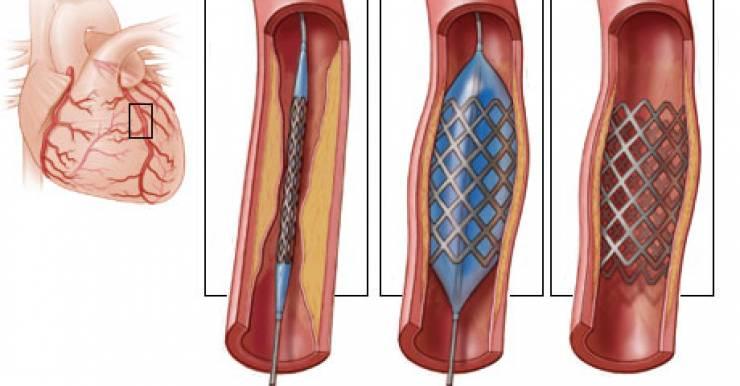 Британские кардиологи из London Chest Hospital в октябрьском номере журнала Европейского общества кардиологов European Heart Journal: Acute Cardiovascular Care рекомендуют как можно раньше использовать первичное чрескожное коронарное вмешательство