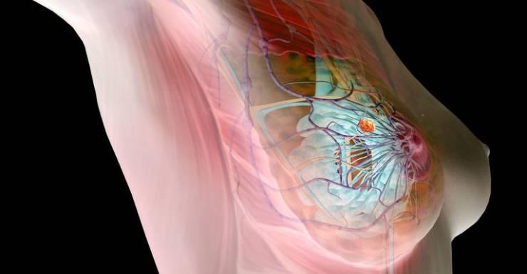 НАН Беларуси разработала новую технологию диагностики рака груди на основе нейросети