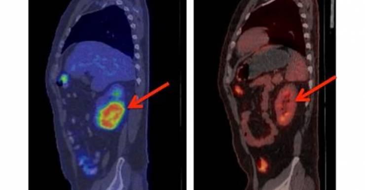 Рассасывание опухоли почки на второй месяц лечения (позитронно-эмиссионная томограмма)  Fred Hutch News Service