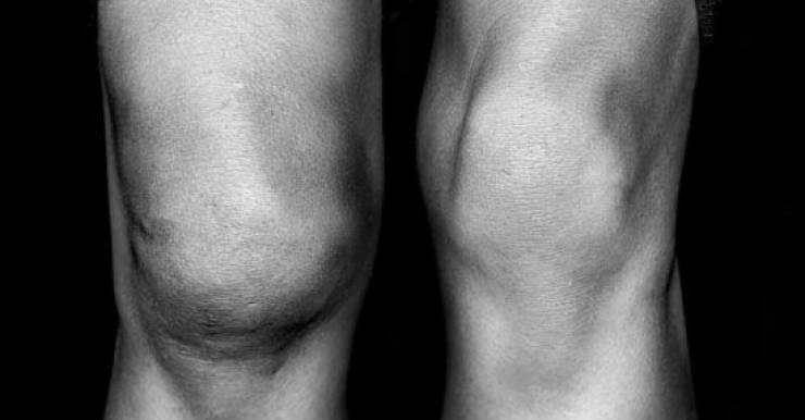 Разрыв мениска коленного сустава: когда нужна операция?