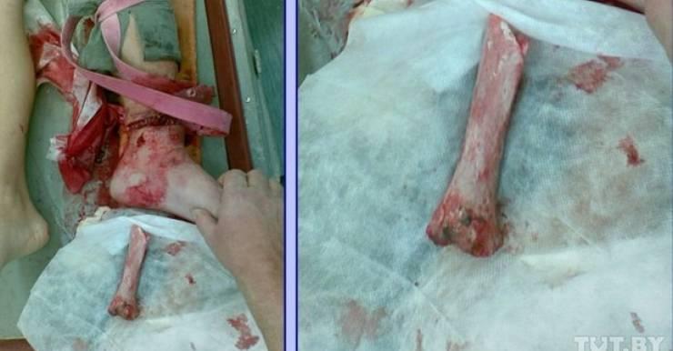 Рваная рана и вылетевшая кость. Таким Сергея привезли в больницу после ДТП. Фото снимка врачей: Анжелика Василевская, TUT.BY