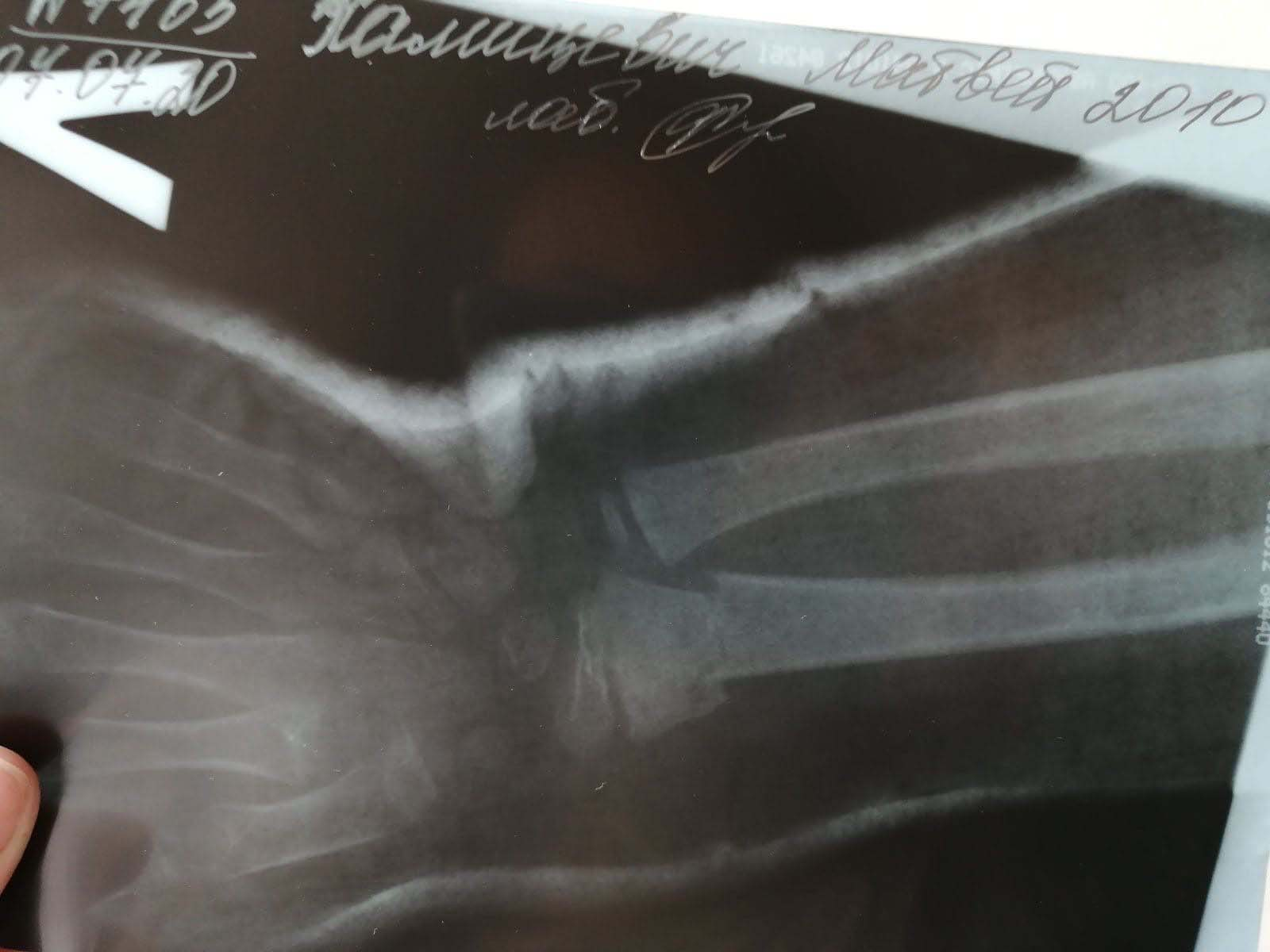 сицилия перелом хвоста со смещением фото самом маленьком японском