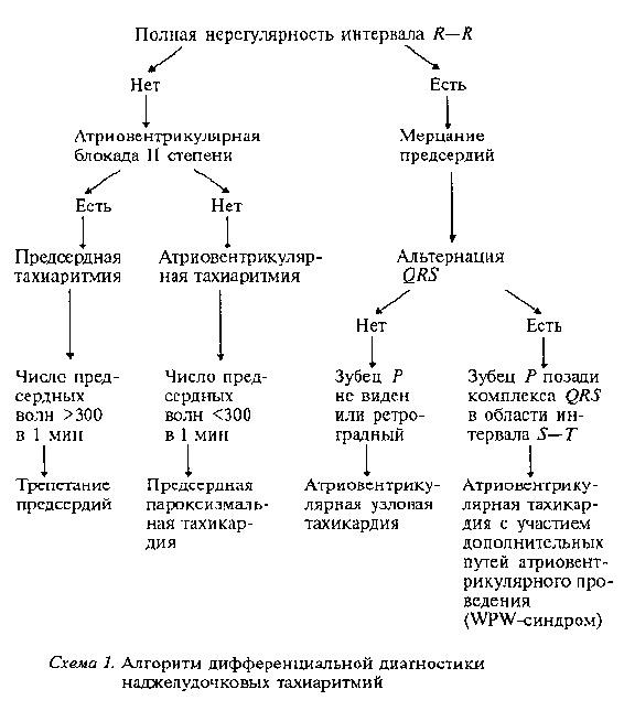 Пароксизмальной мерцательной аритмии дифференциальная диагностика -